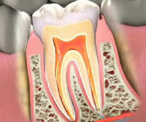 Root Canal Therapy in Lawrence, MA