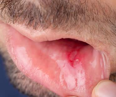 Examining Mouth Sores